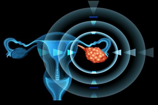 Ovarian Cancer, Ovarian Cancer Diagnose, Ovarian Cancer Awareness, Imaging Test, CT Scan, Ultrasound, Barium Enema X-ray, Biopsy, Laparoscopy, Colonoscopy